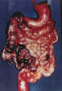 diseased_colon Schokkende beelden - Natuurlijk gezond - Santura