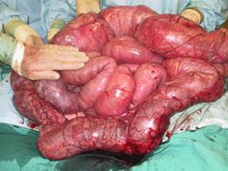 megacolon Schokkende beelden - Natuurlijk gezond - Santura